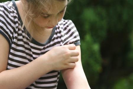 皮肤过敏起疙瘩很痒怎么办?饮食和用药要注意