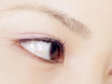 四方法去除鱼尾纹还你年轻朝气的双眸