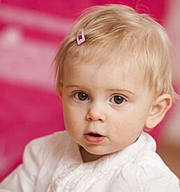小儿湿疹 小儿湿疹的普通护理和家庭护理
