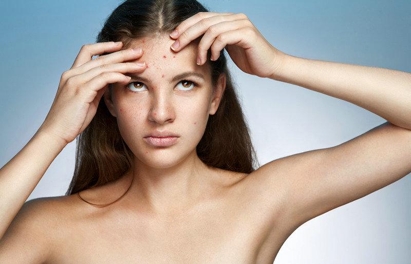青春期如何预防痘痘呢 不再长痘痘的护肤步骤方法
